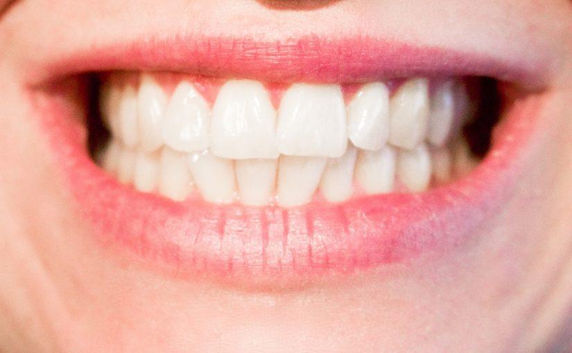 Obecna technologia używana w salonach stomatologii estetycznej zdoła sprawić, że odbierzemy ładny uśmieszek.